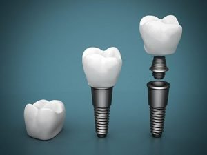 DentArana Dental Implants | Dentist Arana Hills