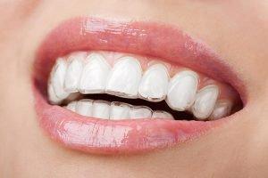 DentArana Invisalign | Dentist Arana Hills