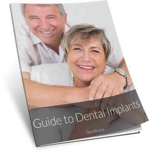 Dental Implants Guide by DentArana Cover