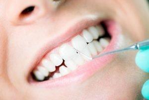 Dentist Arana Hills | Gum Disease