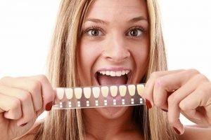 DentArana Porcelain Veneers | Dentist Arana Hills