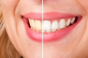 DentArana Teeth Whitening | Dentist Arana Hills