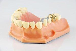 Lost Inlay Onlay Dental Emergency   Dentist Arana Hills