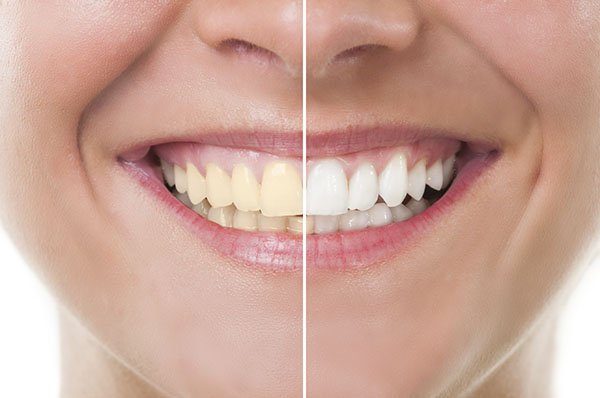 How To Treat Yellow Teeth in 5 Steps