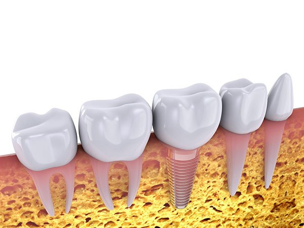 9 Things You Should Know About Dental Implants dentist arana hills