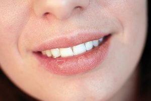 DentArana   Dry Mouth   Dentist Arana Hills