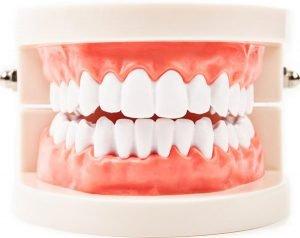 DentArana | Periodontics | Dentist Arana Hills