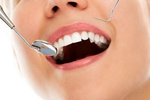 DentArana | Tooth Fillings | Dentist Arana Hills