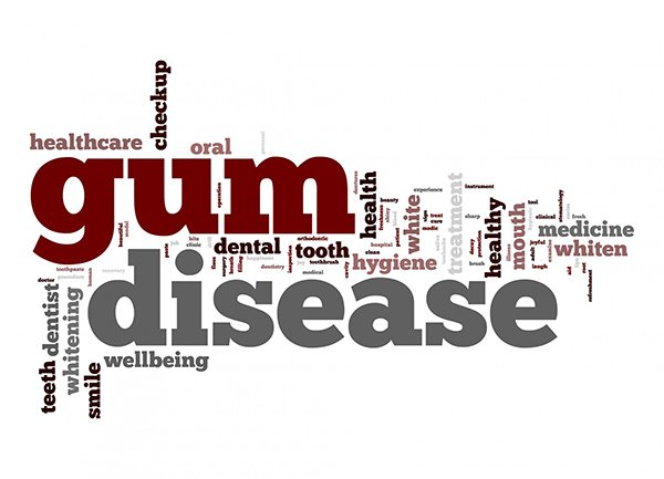 Treating Gum Disease In Our Office And In Your Home