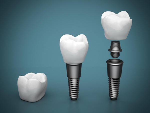 Dental Implants in Arana Hills: Should You Shop Around?