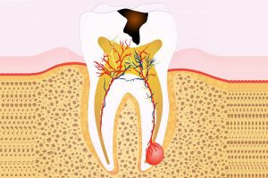 The Ultimate Guide to Root Canal In Arana Hills