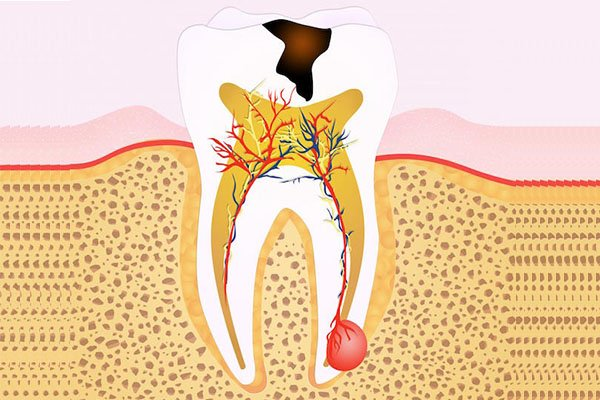 The Ultimate Guide to Root Canal Treatment in Arana Hills